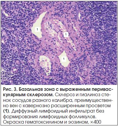 Рис. 3. Базальная зона с выраженным периваскулярным склерозом