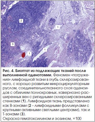 Рис. 4. Биоптат из подлежащих тканей после выполненной аденотомии.