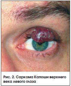 Рис. 2. Саркома Капоши верхнего века левого глаза