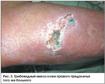 Рис. 5. Грибовидный микоз кожи правого предплечья того же больного