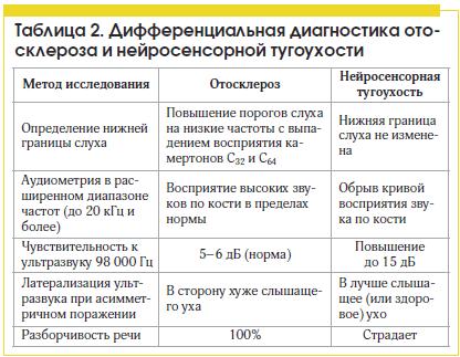 Таблица 2. Дифференциальная диагностика отосклероза и нейросенсорной тугоухости