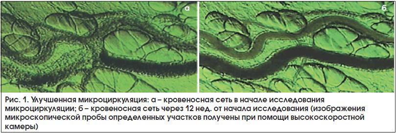 Рис. 1. Улучшенная микроциркуляция