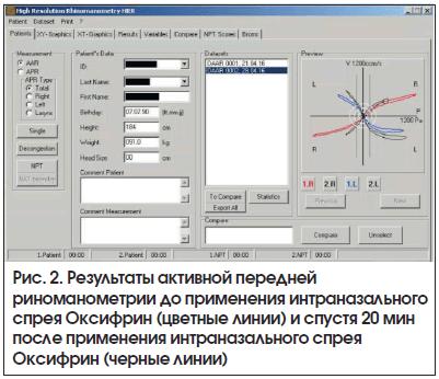 Рис. 2. Результаты активной передней риноманометрии до применения интраназального спрея Оксифрин (цветные линии) и спустя 20 мин после применения интраназального спрея Оксифрин (черные линии)