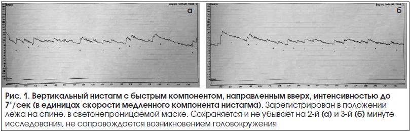 Рис. 1. Вертикальный нистагм с быстрым компонентом, направленным вверх, интенсивностью до 7°/сек (в единицах скорости медленного компонента нистагма).