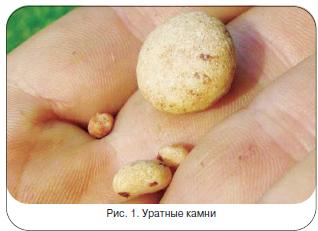 Рис. 1. Уратные камни