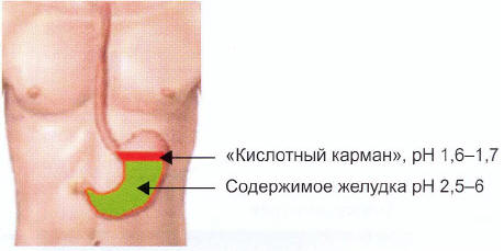 Рис. 1. Схема изображения «кислотного кармана»