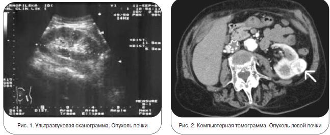 Рис. 1. Ультразвуковая сканограмма. Опухоль почки