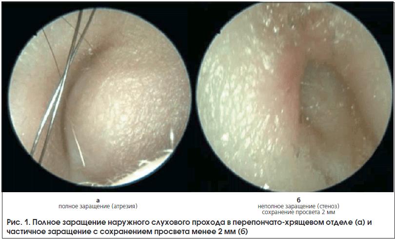 Рис. 1. Полное заращение наружного слухового прохода в перепончато-хрящевом отделе (а) и частичное заращение с сохранением просвета менее 2 мм (б)