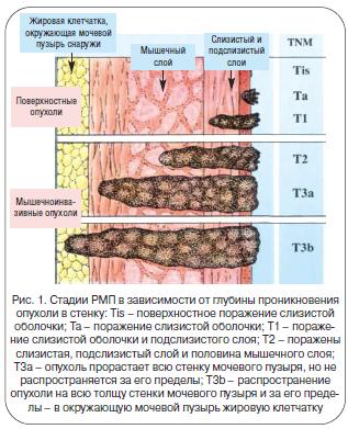 Рис. 1. Стадии РМП в зависимости от глубины проникновения опухоли в стенку
