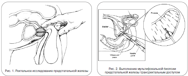 Рис. 1. Ректальное исследование предстательной железы