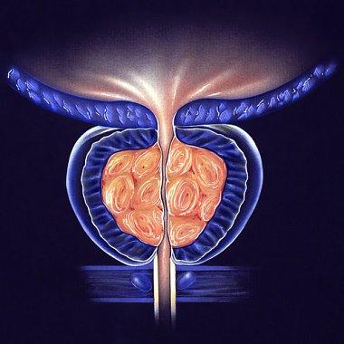 Терапия доброкачественной гиперплазии предстательной железы: в фокусе – воспаление (доклад профессора Грегори Роберта в рамках XVII конгресса Российского общества урологов)