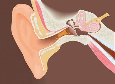Ушная сера: актуальные вопросы нормы и патологии в клинической практике