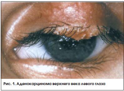 Рис. 1. Аденокарцинома верхнего века левого глаза