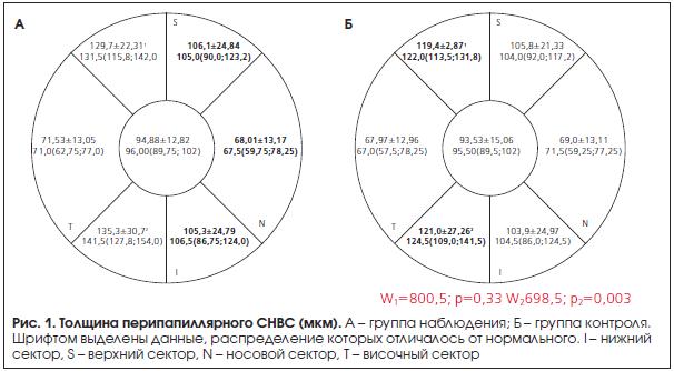 Рис. 1. Толщина перипапиллярного СНВС (мкм).