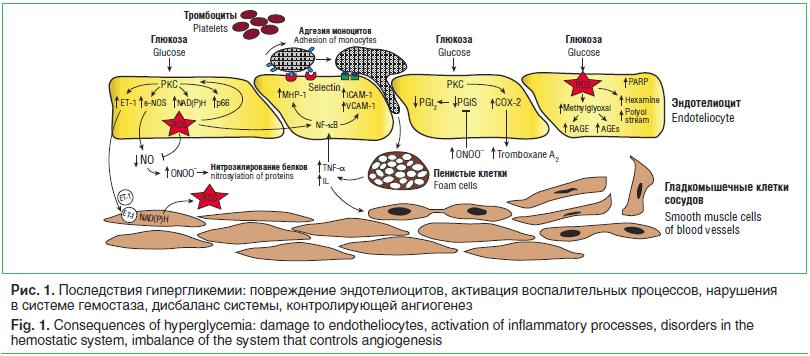 Рис. 1. Последствия гипергликемии: повреждение эндотелиоцитов, активация воспалительных процессов, нарушения в системе гемостаза, дисбаланс системы, контролирующей ангиогенез