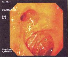 Рис. 6. Рефлюкс-гастрит после наложения холедоходуоденоанастомоза (по С. С. Vere et al., 2005 [56])