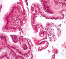 Рис. 11. Кишечная метаплазия (ограниченные области) (по С. С. Vere et al., 2005 [56])