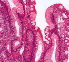 Рис. 12. Изолированная метаплазия железистого эпителия (по С. С. Vere et al., 2005 [56])