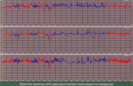 Рис. 16. рН-грамма пациентки, перенесшей гастрэктомию (эзофагоеюноанастомоз) (по О. А. Стороновой с соавт., 2012 [35])