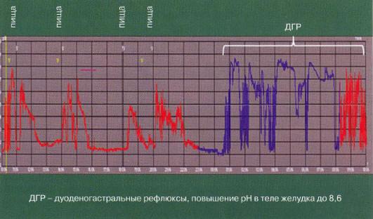 Рис. 17. рН-грамма тела желудка пациента с ДГР в ночные и утренние часы (по О. А. Стороновой с соавт., 2012 [35])