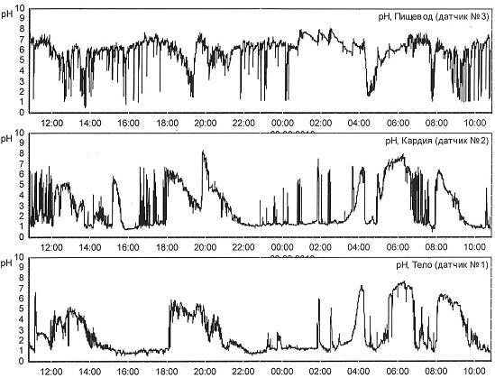 Рис. 3 Суточные рН-грамма пищевода, кардии и тела желудка пациентки Г. 56 лет с патологическими ГЭР в пищеводе