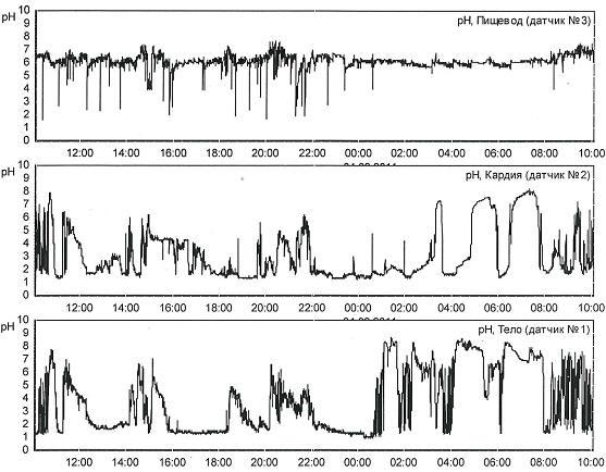 Рис. 2 Суточные рН-граммы пищевода, кардии и тела желудка пациентки С. 37 лет с нормальными ГЭР в пищеводе