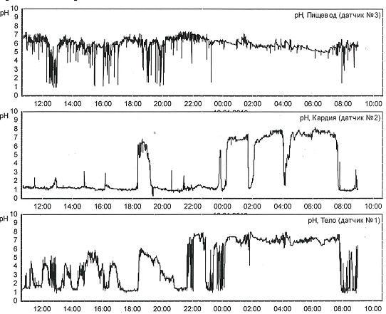 Рис. 1. Суточные рН-граммы пищевода, кардии и тела желудка пациентки Ф. 27 лет с нормальными ГЭР в пищеводе