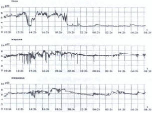 Рис. 5.3. 24-часовая рН- метрия (пояснение в тексте)