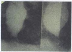 Рис. 5.2. Рентгенологическое исследование пищевода (пояснение в тексте)