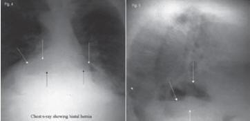 Рис. 2. Рентгенограммы грудной клетки в прямой (слева) и боковой (справа) проекциях. Большая грыжа пищеводного отверстия диафрагмы обнаруживается по воздушном у пузырю желудка (Sawyer MAJ. MD Consulting Staff, Department of Surgery, Comanche County Memorial Hospital; Medical Director, Lawton Bariatrics)