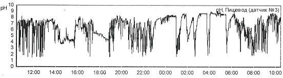 Рис. 4 Суточная рН пищевода (на 5 см выше НПС) пациента Д., 52 года