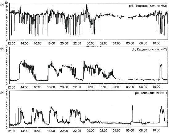 Рис. 3 Суточная рН пищевода (на 5 см выше НПС) пациента К., 38 лет