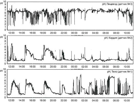 Рис. 2 Суточная рН пищевода (на 5 см выше НПС) пациентки К., 27 лет