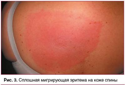 Рис. 3. Сплошная мигрирующая эритема на коже спины