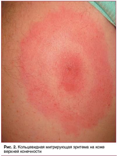 Рис. 2. Кольцевидная мигрирующая эритема на коже верхней конечности