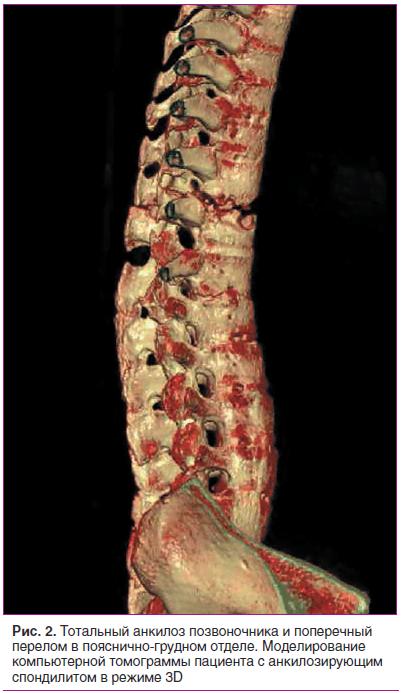 Рис. 2. Тотальный анкилоз позвоночника и поперечный перелом в пояснично-грудном отделе. Моделирование компьютерной томограммы пациента с анкилозирующим спондилитом в режиме 3D