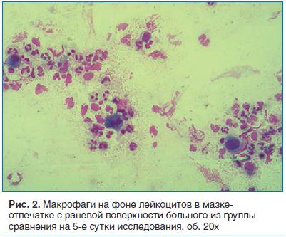 Рис. 2. Макрофаги на фоне лейкоцитов в мазке- отпечатке с раневой поверхности больного из группы сравнения на 5-е сутки исследования, об. 20х