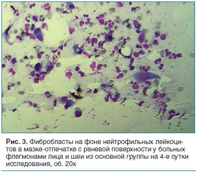 Рис. 3. Фибробласты на фоне нейтрофильных лейкоцитов в мазке-отпечатке с раневой поверхности у больных флегмонами лица и шеи из основной группы на 4-е сутки исследования, об. 20х
