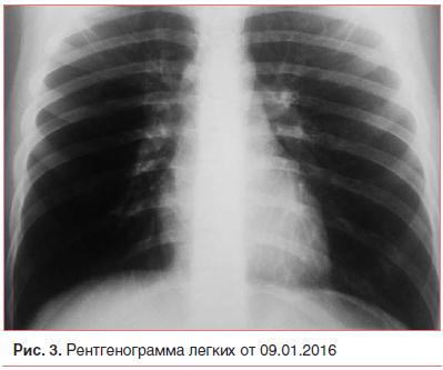 Рис. 3. Рентгенограмма легких от 09.01.2016