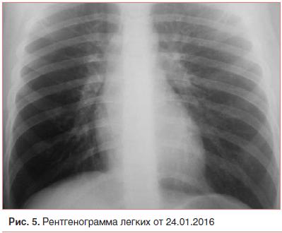 Рис. 5. Рентгенограмма легких от 24.01.2016
