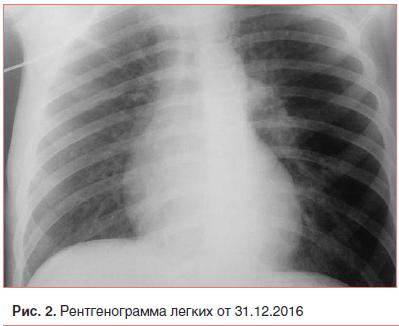 Рис. 2. Рентгенограмма легких от 31.12.2016