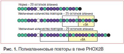 Рис. 1. Полиаланиновые повторы в гене PHOX2B