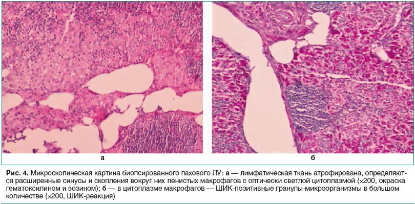Рис. 4. Микроскопическая картина биопсированного пахового ЛУ: а — лимфатическая ткань атрофирована, определяют- ся расширенные синусы и скопления вокруг них пенистых макрофагов с оптически светлой цитоплазмой (×200, окраска гематоксилином и эозином); б —