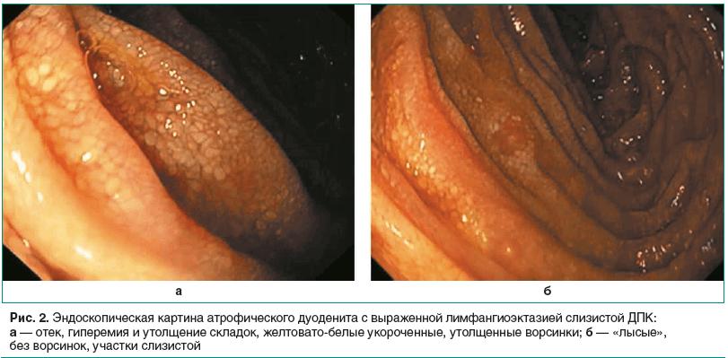 Рис. 2. Эндоскопическая картина атрофического дуоденита с выраженной лимфангиоэктазией слизистой ДПК: а — отек, гиперемия и утолщение складок, желтовато-белые укороченные, утолщенные ворсинки; б — «лысые», без ворсинок, участки слизистой