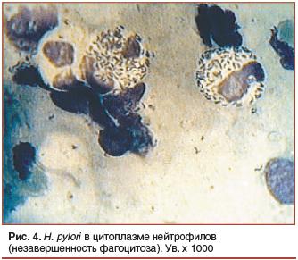Рис. 4. H. pylori в цитоплазме нейтрофилов (незавершенность фагоцитоза). Ув. х 1000