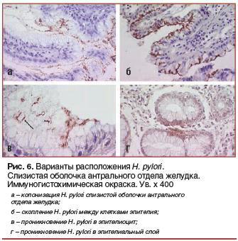 Рис. 6. Варианты расположения H. pylori. Слизистая оболочка антрального отдела желудка. Иммуногистохимическая окраска. Ув. х 400