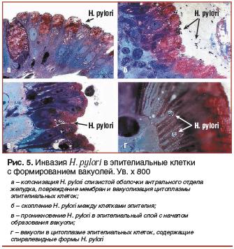 Рис. 5. Инвазия H. pylori в эпителиальные клетки с формированием вакуолей. Ув. х 800