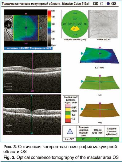 Рис. 3. Оптическая когерентная томография макулярной области OS
