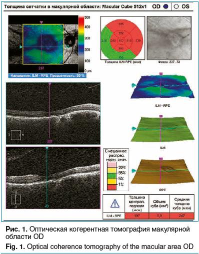 Рис. 1. Оптическая когерентная томография макулярной области OD