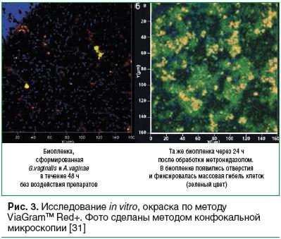 Рис. 3. Исследование in vitro, окраска по методу ViaGramTM Red+. Фото сделаны методом конфокальной микроскопии [31]